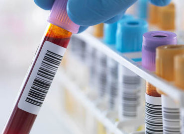 New Blood Test is Better Predictor of Prostate Cancer Risk
